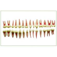 2 Times Dental Pulp Anatomical Model