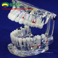 DENTAL09 (12568) Modelo oral de enfermedad humana de tamaño transparente adulto