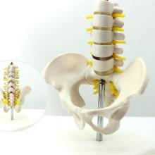 PELVIS06 (12343) Pelvis de media vida con modelo de anatomía de vértebras lumbares de 5 piezas, modelo de vértebras de madera