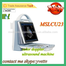 MSLCU23M 2016 Nouvelle machine à ultrasons pour ordinateur portable machine à ultrasons Doppler couleur Protable machine à ultrasons prix
