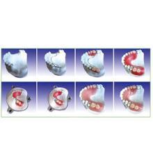 Dental Teeth Model of Producing Steps of Articulator