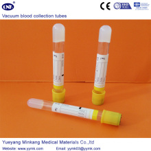 Tubo Sst para coleta de sangue a vácuo (ENK-CXG-025)