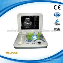 Escáner del ultrasonido del ordenador portátil de la alta calidad de MSLPU26-M, PARA LA VENTA!