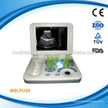 MSLPU26-M High quality Laptop ultrasound scanner, FOR SALE!