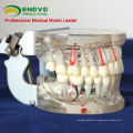 DENTAL07(12566) Transparent Adult Pathological Teeth Model for Dental Study and Communication
