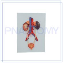 PNT-0568 venda quente modelo de alívio do sistema urinário
