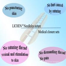 Équipement de fermeture de plaies médicales avec ISO13485