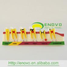 Cárie de demonstração adulta PT-M7 desenvolvendo modelo dentário para a educação