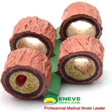 HEART07(12483) 4-Stage Cross Section Human Artery (Anatomical) Model, Anatomy Models > Heart Models