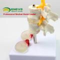 VERTEBRA07 (12391) Medical Lumbar Vert with Discs, Nature, Central Herniation and Dorsal Herniation,Lumbar Disc Herniation Model