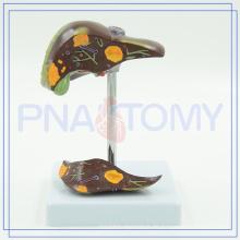 PNT-0752 Leber und kranke Gallenblase Modell Customized