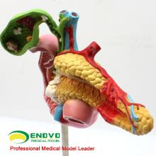 VISCERA04 (12541) Modelo patológico de ciencia médica del páncreas, el duodeno y la vesícula biliar