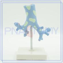 PNT-0751 Modelo de tráquea Bronchi para uso médico
