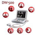 2016 hot sale and durable usb probe ultrasound scanner