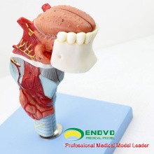 THROAT02 (12506) Larynx-Modell mit Toungue und Zähnen, Full Size Vergrößern, 5 Teile, HNO-Modelle> Larynx-Modelle