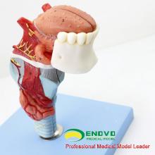 Модель THROAT02(12506) гортани с toungue и зубы, полный размер увеличить, 5 частей, е. Н. т. модели > модели гортани
