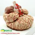 BRAIN07 (12404) Cerveau anatomique humain avec artères grandeur nature - 9 pièces, modèles anatomiques> Medical Brain Models