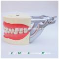 Soft Gum Dental Teaching Model for Teeth Preparing Training 13010