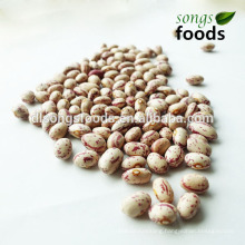 Kidney Buyer,Different Types Dried Beans