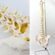 SPINE10 (12382) Quality Medical Science Anatomisches Modell, lebensgroße Wirbelsäule mit Becken