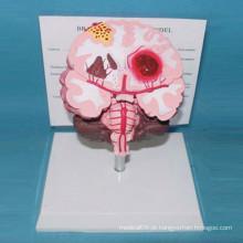Modelo anatômico do cérebro humano patológico para ensino e demonstração