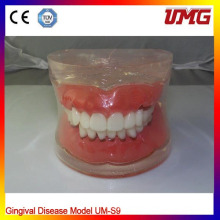 Dental Teaching Model for Gingival Disease Model