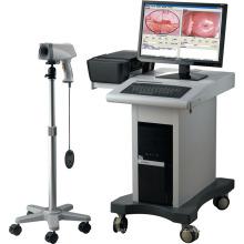 Medical Equipment Colposcope Digital Imaging System