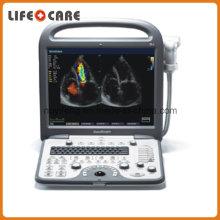 Sonoscape S8 Portable Color Ultrasound Doppler System 3D 4D Ultrasound Machine