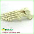 TF12 (12323) Solid Foam Normal Anatomy Large Left Fused Foot Orthopaedic Model