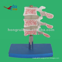 HR-134 Deluxe Human osteoporosis anatomical Model (3 vertebrae)