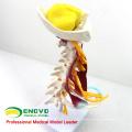VERTEBRA02 (12385) Medical Science Luxury Life-size Cervical Muscle and Nerve Model,Spine/Vertebrae Models > Cervical Vertebra