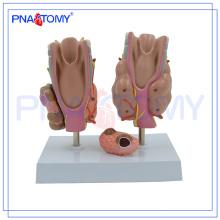 Modelo de enfermedad tiroidea PNT-0757, modelo de tiroides, modelo de anatomía tiroidea