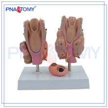 PNT-0757 Modèle de la maladie thyroïdienne, modèle thyroïdien, modèle d'anatomie thyroïdienne
