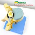 VERTEBRA11 (12395) Medical Science Thoracic Vertebrae with Spinal Cord(medical model, anatomical model)