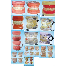Equipo de Educación Científica Oral Dentición Estándar Modelo de Dientes Modelo de Prótesis