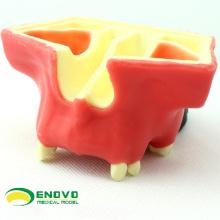 Modelo dental da prática do elevador da cavidade de IMPLANT07 (12615) usado praticando