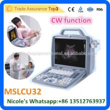 2016 New Arrival MSLCU32i good CW function 4d color doppler ultrasound machine