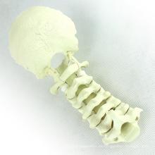 TF11 (12322) Anatomía normal Modelos ortopédicos Columna cervical con occipital