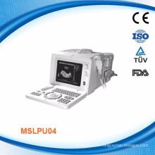 Precio de fábrica de ultrasonido de eco portátil profesional precio