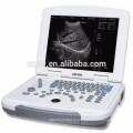 высокое качество и низкая цена ультразвуковые диагностические приборы ноутбук ультразвуковой сканер