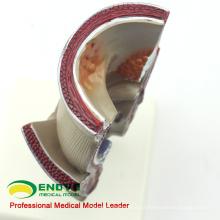 VISCERA10 (12547) Ciência Médica Modelo Anatomopatológico Humano do Reto