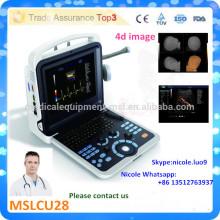 MSLCU28i La plus récente technologie 4D couleur doppler échographie / scanner échographie Doppler couleur avec sonde de volume 4d