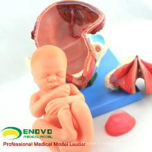 ANATOMY32 (12470) Modèle d'anatomie de procédure d'accouchement humain d'accouchement se compose d'utérus, foetus, placenta 12470