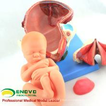 ANATOMY32(12470) типовая процедура доставки роды анатомии человека состоит из матки, плода, плаценты 12470