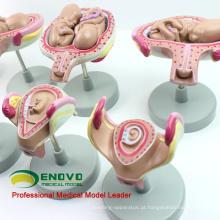 ANATOMY12 (12450) Classic Gravidez 8-Series Series Set, Anatomia Modelos Gravidez Feminina 12450