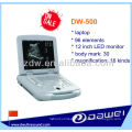 scanner portable échographe pour vétérinaire (DW-500)