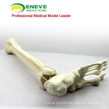 GROSSHANDEL SIMULATION KNOCHEN 12317 Medizinische Anatomie Künstliche Tibia mit Fußknochen, Orthopädie Praxis Simulation Knochen