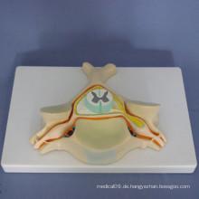 Menschliche erste zervikale erweiterte Anatomie Medizinische Modell (R140101)