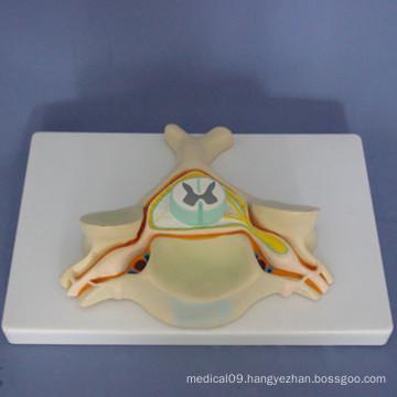 Human First Cervical Enlarged Anatomy Medical Model (R140101)
