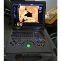 Dopplers portátiles de la máquina del ultrasonido del explorador del ultrasonido